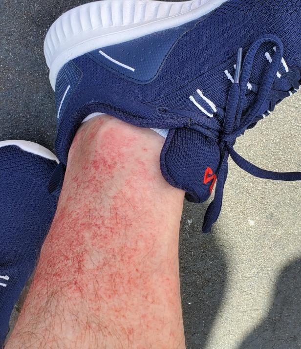 David's Golfer's Rash on his leg
